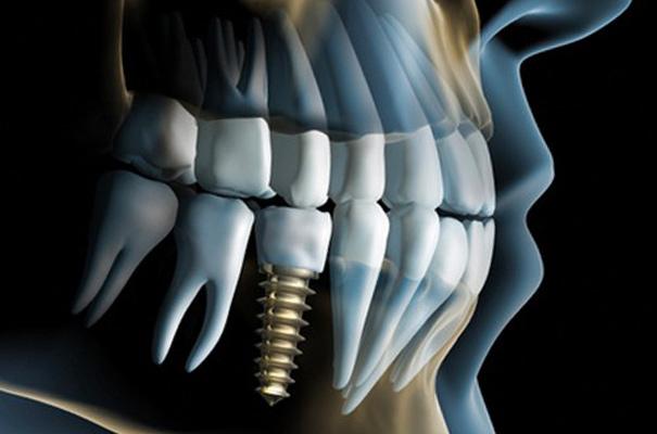 Implantologia | Studio Dentistico De Luca