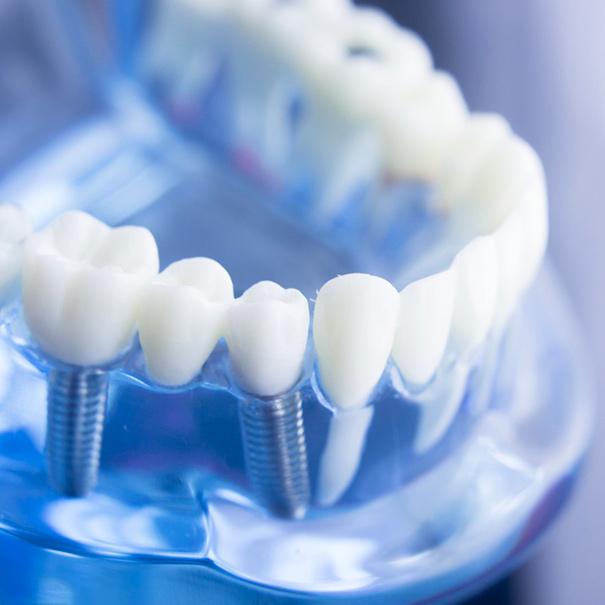 Trattamenti | Studio Dentistico De Luca