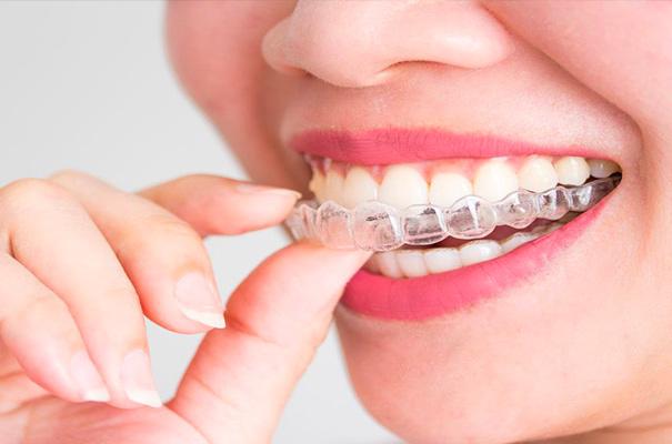 Ortodonzia invisibile | Studio Dentistico De Luca
