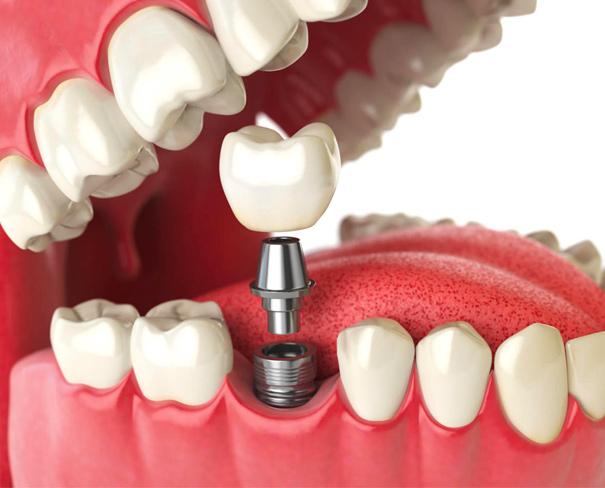 News   Studio Dentistico De Luca