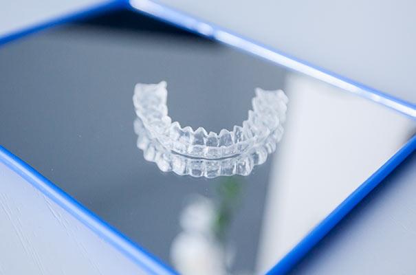 Ortodonzia | Studio Dentistico De Luca