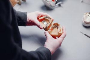 Protesi Dentale: mani con guanti chirurgici che tenfono in mano protesi